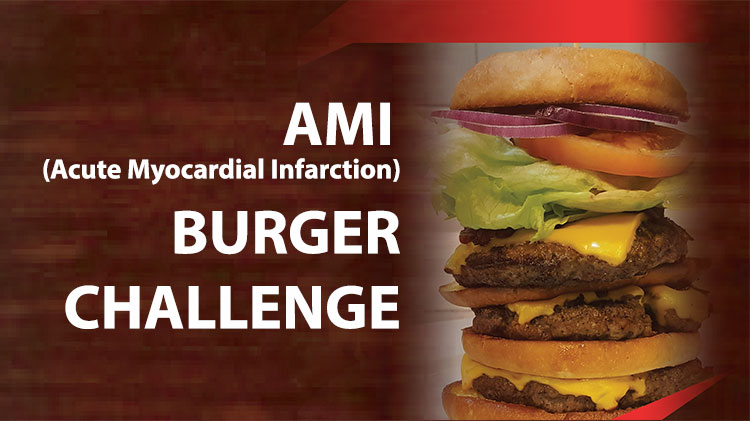 AMI Burger Challenge